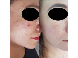 Tratamientos faciales - 640283