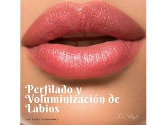 Aumento de labios-640284