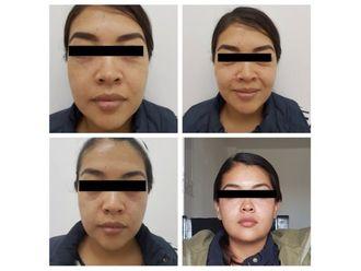 Rejuvenecimiento facial-640285