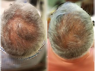 Trasplante de cabello - 645831