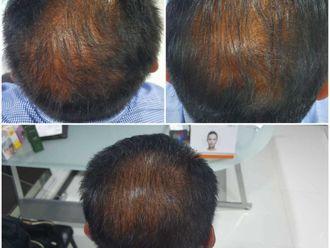 Alopecia-660412