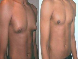 Cirugía plástica-638900