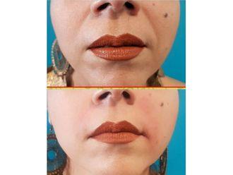 Ácido hialurónico-636618