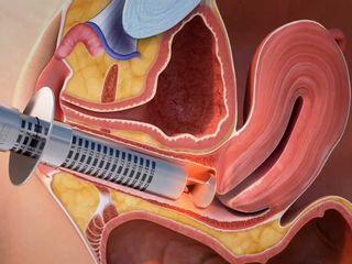 Tensado vaginal en centro ginecológico .jpg