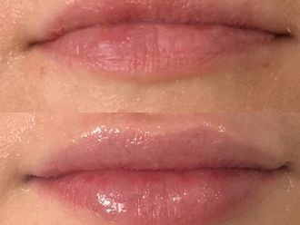 Aumento de labios-646676
