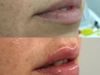 Aumento de labios-693954