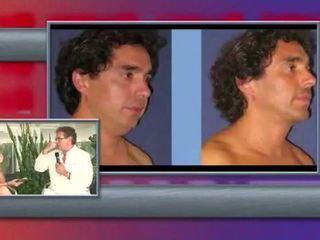 Cirugia de Menton con el Dr. Marco Antonio Priego Tapia