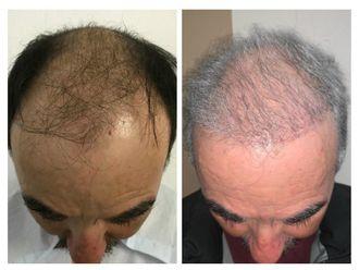 Trasplante de cabello - 639013