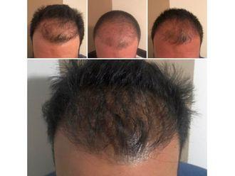 Trasplante de cabello - 639015