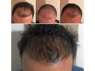 Trasplante de cabello