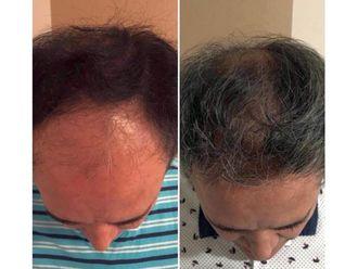 Trasplante de cabello - 639016