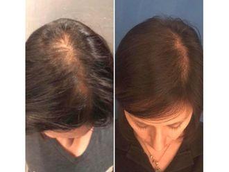 Trasplante de cabello - 639019