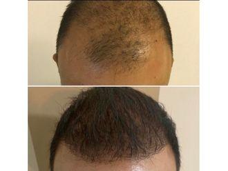 Trasplante de cabello - 639020