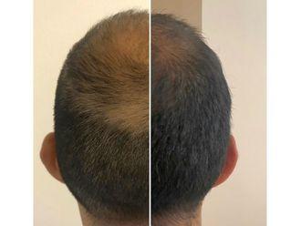 Trasplante de cabello - 639021