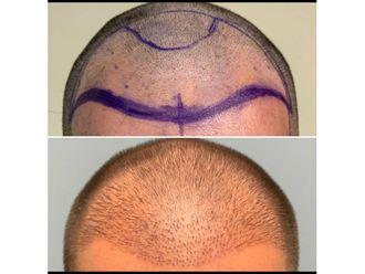 Trasplante de cabello - 639040