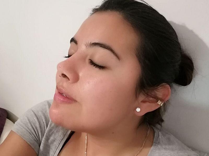Rinoplastia funcional y septoplastia en Puebla