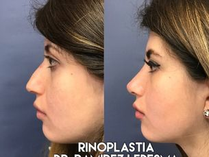 Rinoplastia anestesia local $18,999. pesos