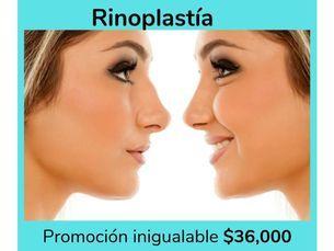 ¡Rinoplastía estética a sólo $45,000