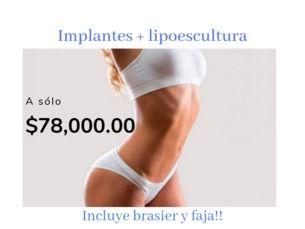 ¡Lipoescultura e implantes al mismo tiempo!