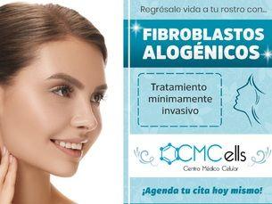 Fibroblastos alogénicos
