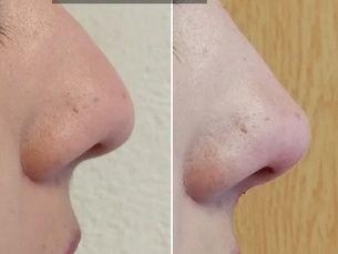 Luce una nariz espectacular y bella, de $8500 a $7000 pesos