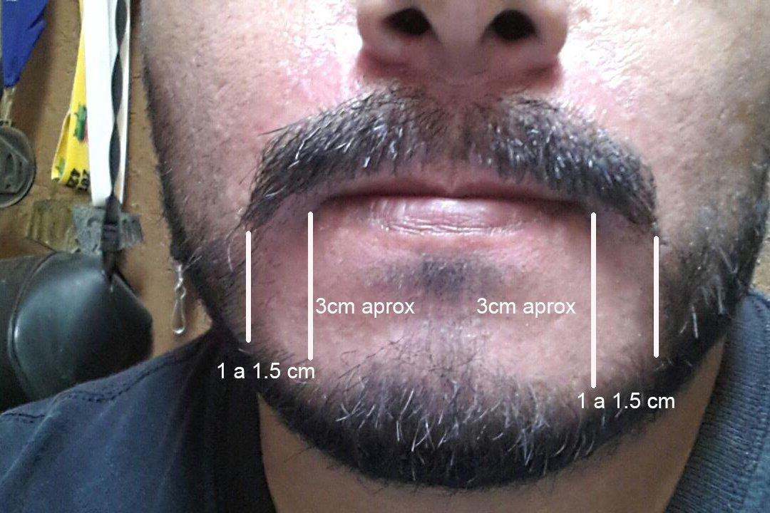 Trasplante de barba - 2056