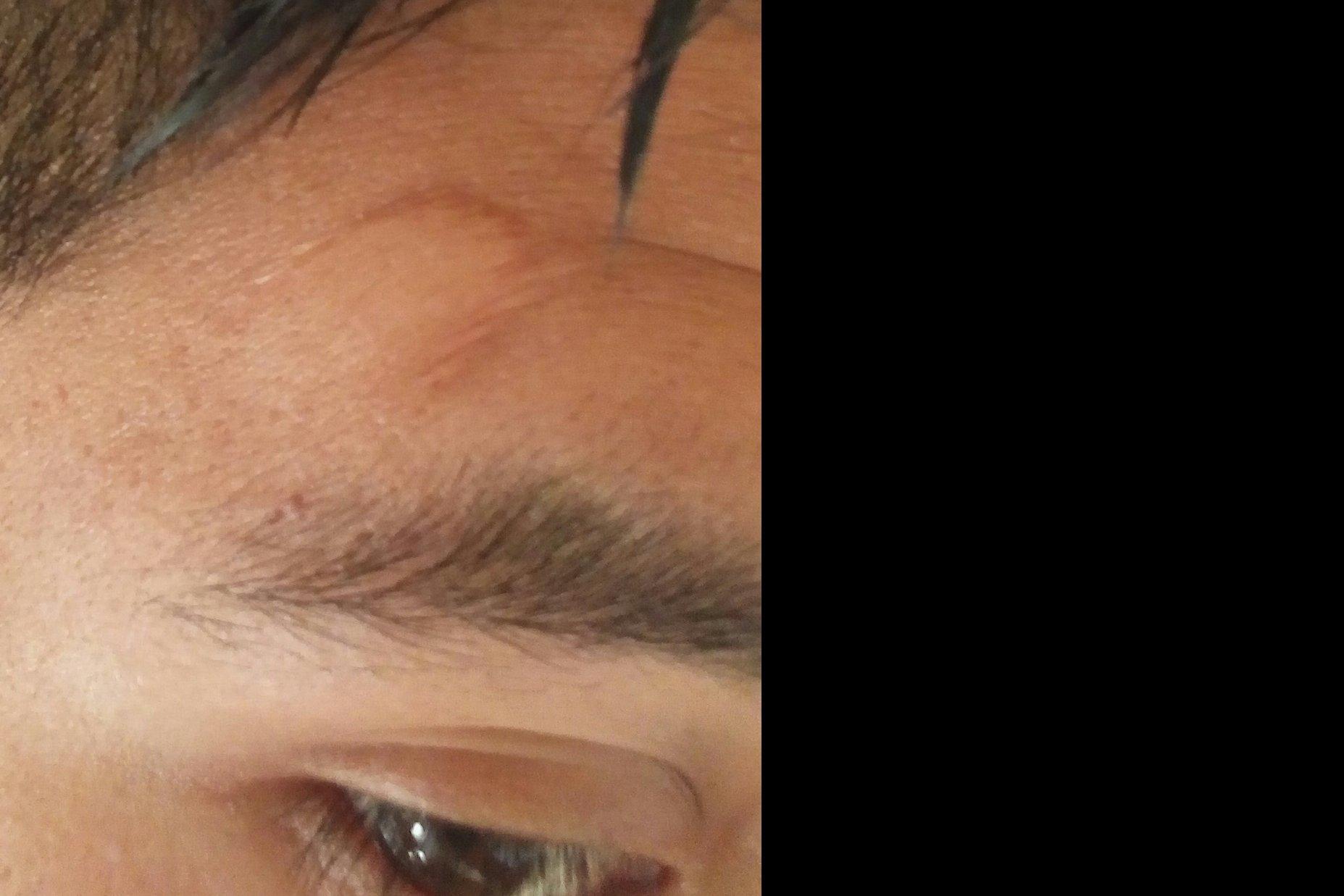 Cirugía en cicatriz de frente - 4594