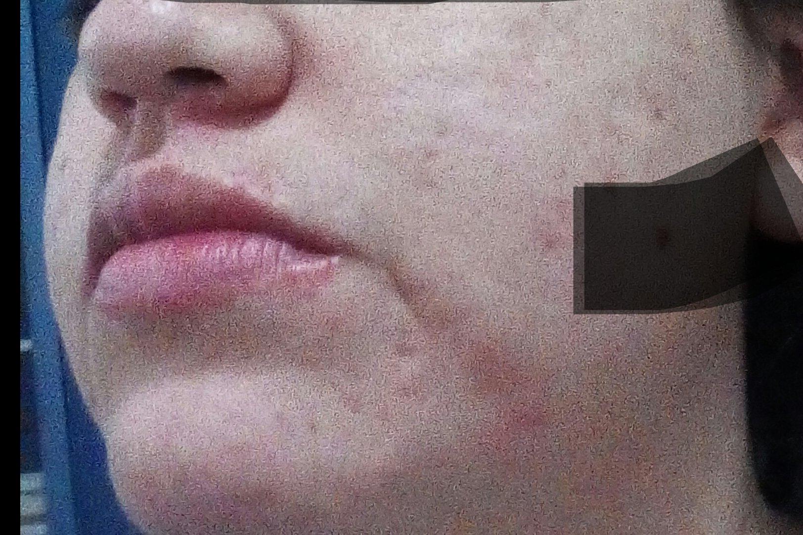 Crema humectante para persona de 26 años con piel delicada al sol y mixta - 6053