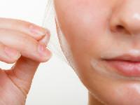 acne-peel system®