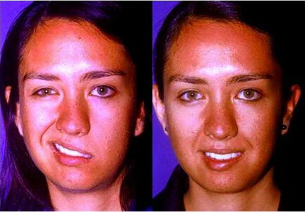 Antes y después de cirugía maxilofacial