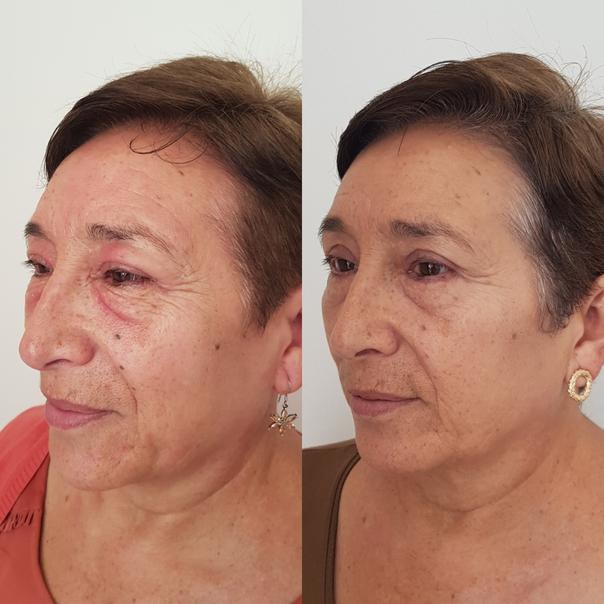 Técnicas blefaroplastia