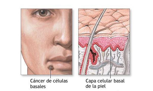 ¿Cómo se realiza el tratamiento para combatir el carcinoma basocelular?