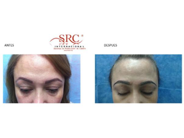 Alopecia antes y después