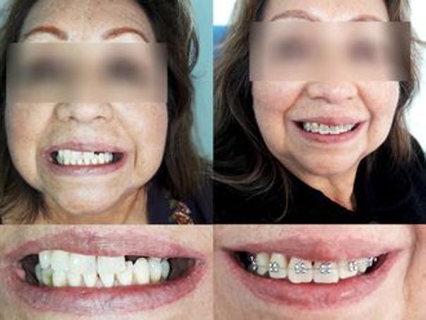 antes y después implantes dentales