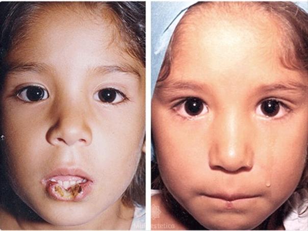 Antes y después quelioplastia
