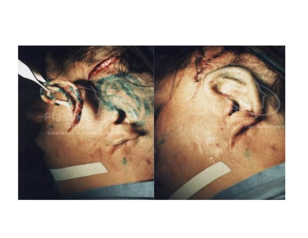Antes y después de una cirugía plástica reconstructiva