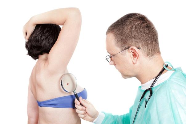 ¿Cómo saber si soy candidato para un tratamiento contra un carcinoma basocelular?