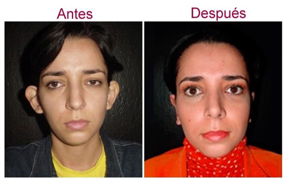 Antes y después de otoplastia
