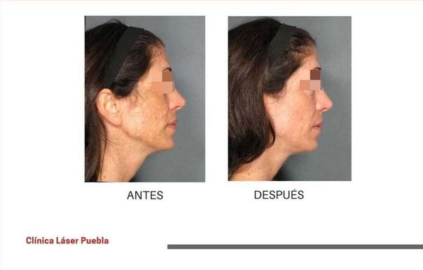 Resultados de manchas en la piel
