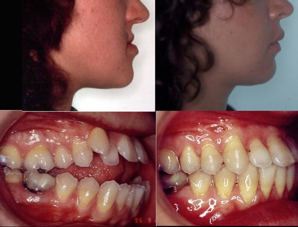 Resultados cirugía maxilofacial