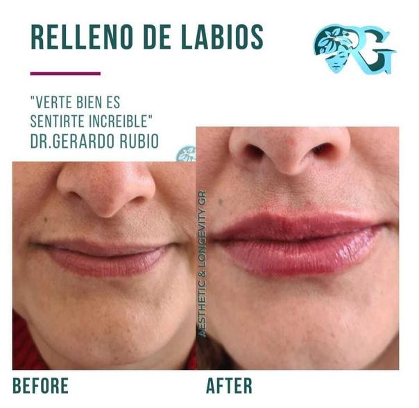 Primera cita aumento labios