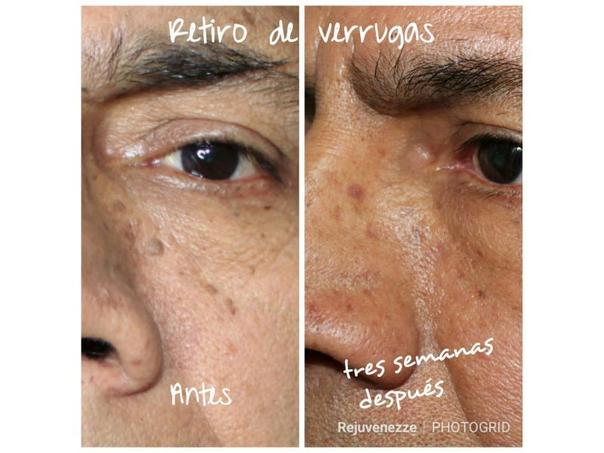 cicatriz de eliminación de verrugas