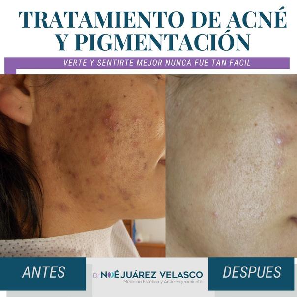 Resultados tratamiento de acné