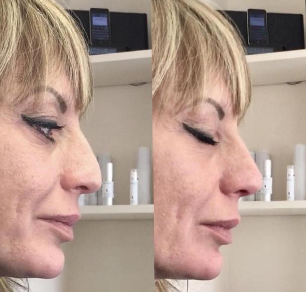 Antes y después de rinomodelación