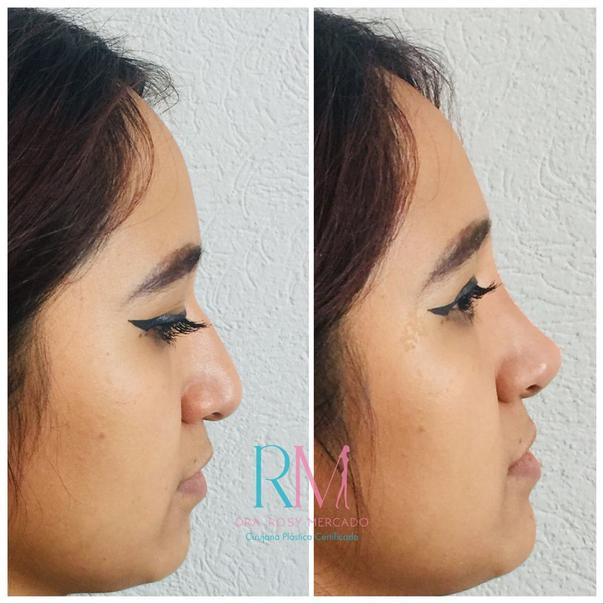 Antes y después de la rinomodelación