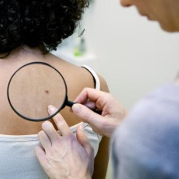 ¿Cómo es la primera cita con el dermatólogo?