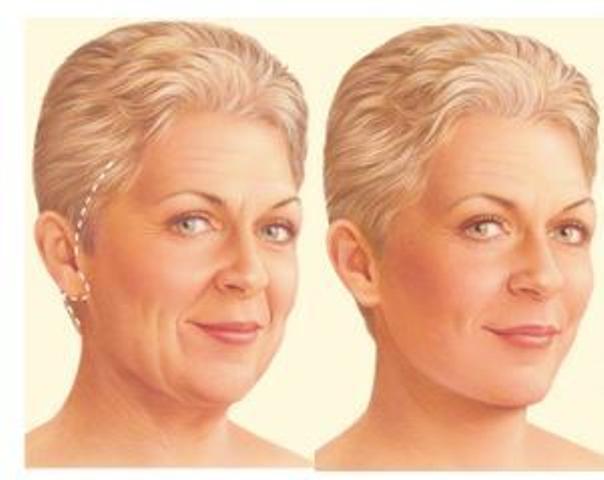 ¿Qué una cirugía facial?