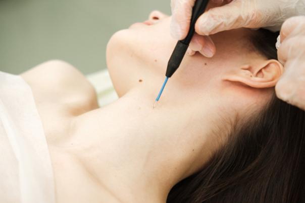 profesional de eliminación de verrugas