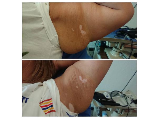 antes y después de mesoterapia