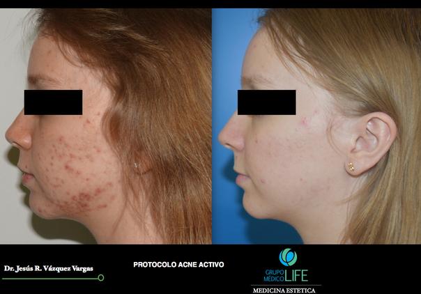 Antes y después de Tratamiento de acné
